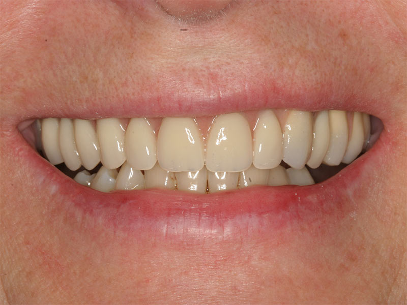 Gaumenplatte oberkiefer ohne josumode: Zahnprothese